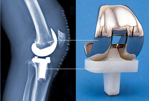 home knee replacement surgery